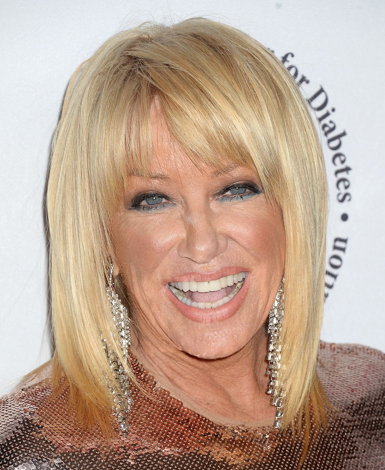 You are Suzanne somers facial was vicious