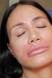 Djamila Rowe - Goes to a Botox Session in Berlin 08/21/2017